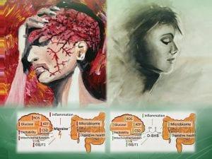migraines and Keto